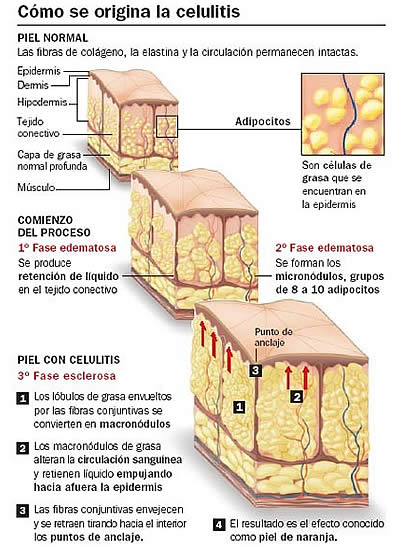 celulitis-ozonoterapia-valencia