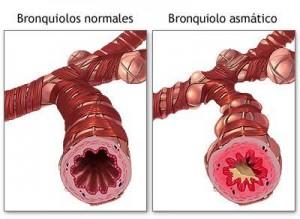 ozonoterapia-bronquiolo-normal-vs-bronquiolo-asmatico