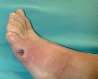 Fig. 2 Ulcera Isquémica.