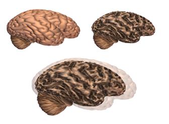 cerebro-normal-cerebro-alzheimer-ozono-terapia-valencia