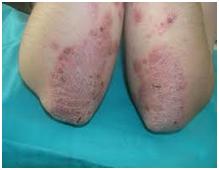 Fig. 1a. Lesiones cutáneas de la Psoriasis (ambos codos)