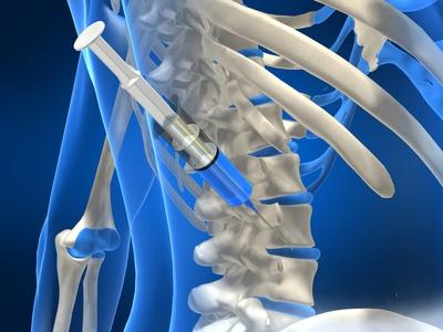 terapia con ozono para hernia discal