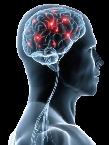 ozonoterapia-tratamiento-esclerosis-multiple-valencia