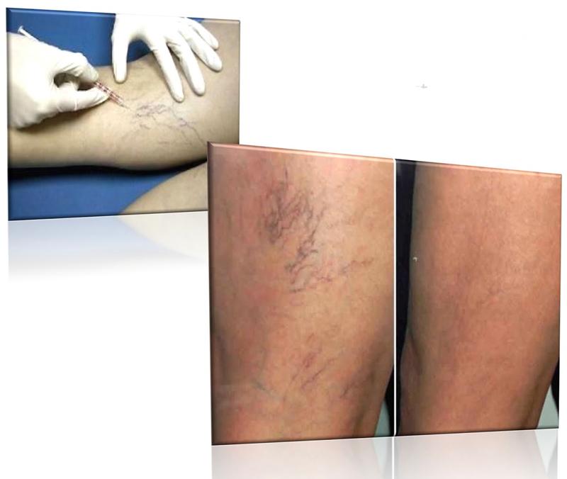 tratamiento-microvarices-ozono-ozonoterapia-valencia