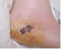 fig. 3 Ulcera Neuroisquémica.