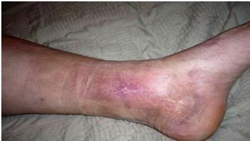 Ulcera Trófica antes después del tratamiento