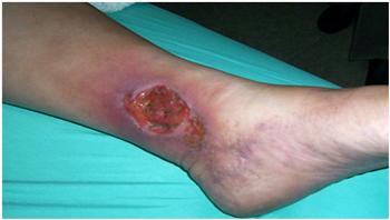 Ulcera Trófica antes del tratamiento