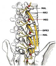 Figura 1. Columna lumbar: L2: Lumbar2, L3. L4, L5. TP: apófisis transversa. En amarillo raíces nerviosas. Puntos rojos: lugar donde dirigir la cánula (target). MB: medial brach, nervio a bloquear a través de la cánula