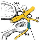 Figura 3. DPR: raíz dorsal. MB: medial branch, en azul zona dónde aplicar la cánula. AP: apófisis transversa de la vértebra cervical.